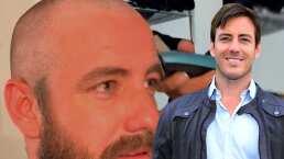 ¡Se rapó!: Juan Diego Covarrubias se somete a radical transformación