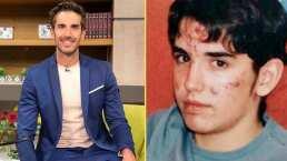 """Pedro Prieto recuerda lo doloroso que fue padecer acné durante su adolescencia: """"Me acomplejaba muchísimo"""""""