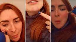 Ariadne Díaz se lastimó por andar usando ventosas en la cara