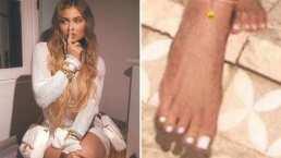 'Me lo rompí': Kylie Jenner tras críticas sobre la 'deformidad' de sus pies