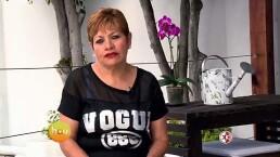 Cadena de ayuda: Ana María y su caso de várices