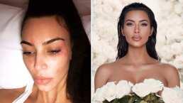 Así oculta Kim Kardashian su psoriasis