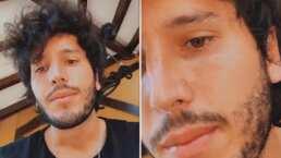 La pregunta que Sebastián Yatra le hizo a las mujeres por una espinilla que le salió en el rostro