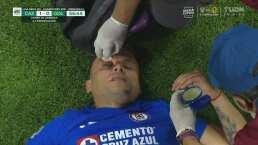¡Sangra el goleador! 'Cabecita' choca con la rodilla de Brizuela