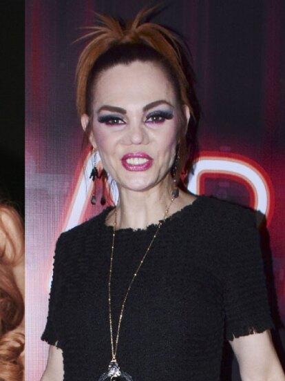 Conoce las tragedias que cambiaron la vida y el rostro de la famosa modelo mexicana.