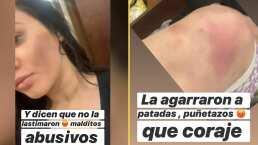 """""""La agarraron a patadas y puñetazos"""": Brenda Zambrano denuncia al hombre que supuestamente golpeó a su hermana"""