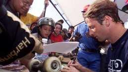Tony Hawk presume rayos x de la terrible lesión en sus dedos
