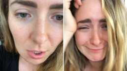 Video: Ariadne Díaz sufre picadura de una abeja y ahora anda: 'Con la cara chueca'