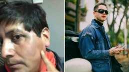 Tiktoker muestra cómo quedó de la cara tras enfrentarse a JD Pantoja y habla de lo sucedido