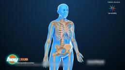 El Tema de Hoy: La Osteoporosis.