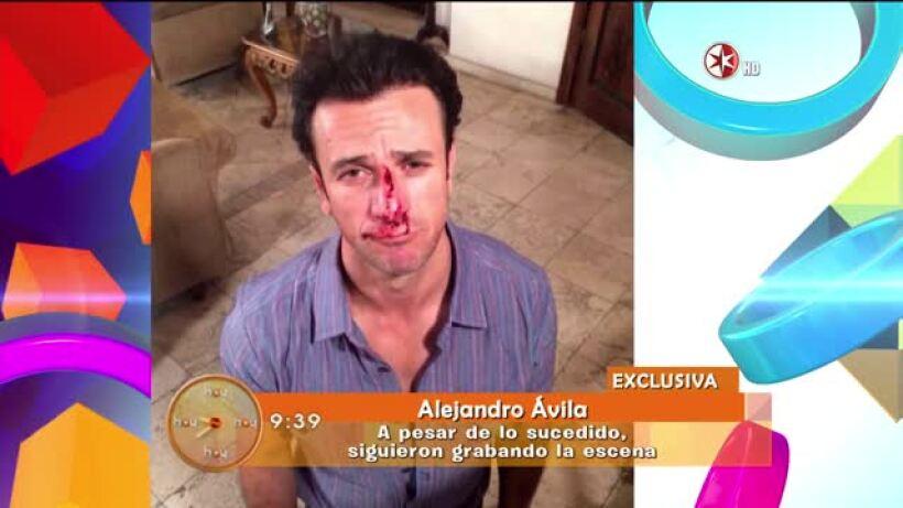 Alejandro Ávila se recupera del golpe que le dió Sergio Sendel