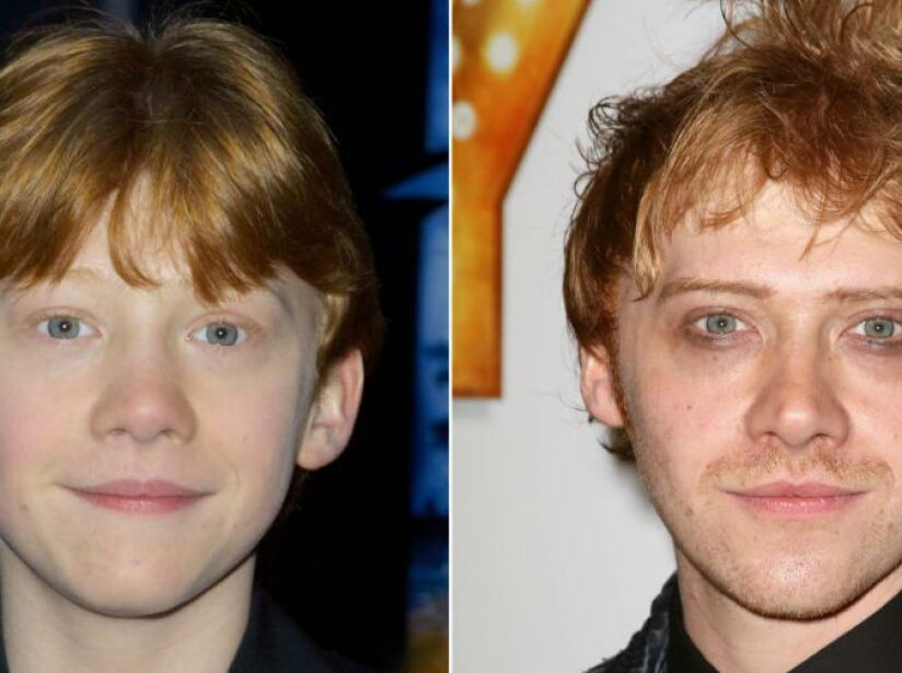 6. Rupert Grint (27 años): El famoso Ron Weasley de Harry Potter es ahora un moderno pelirrojo.