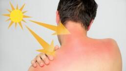 Cinco señales que indican que podrías ser alérgico al sol