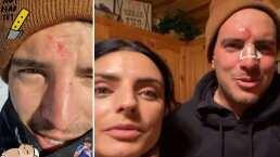 Por no traer casco, Vadhir Derbez se golpea fuertemente la cara tras caerse mientras esquiaba