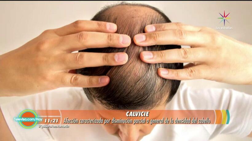 LOS DOCTORES DE HOY: Descubre todo sobre la alopecia