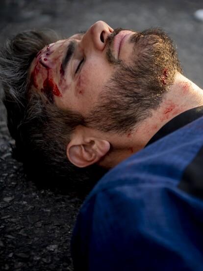 Daniel quedó inconsciente cuando la ambulancia en la que viajaba fue embestida por otro vehículo.
