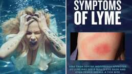 Avril Lavigne dedica mensaje de solidaridad a Justin Bieber; ambos sufren la misma enfermedad