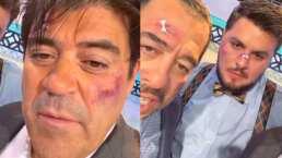 El Burro y Paul Stanley aprovechan el maquillaje que traen para fingir una escena dramática