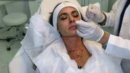 Galilea Montijo se somete al facial vampiro para eliminar las líneas de expresión